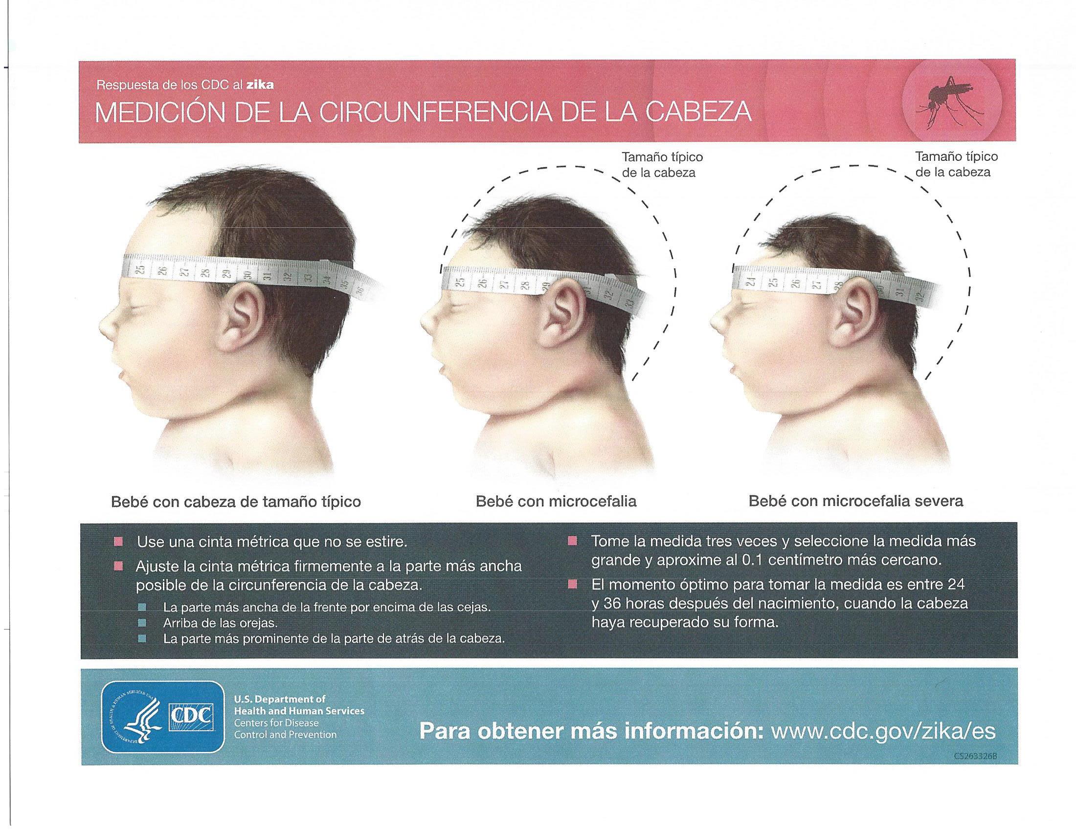 Flyer Informativo - Zika foto_Página_3